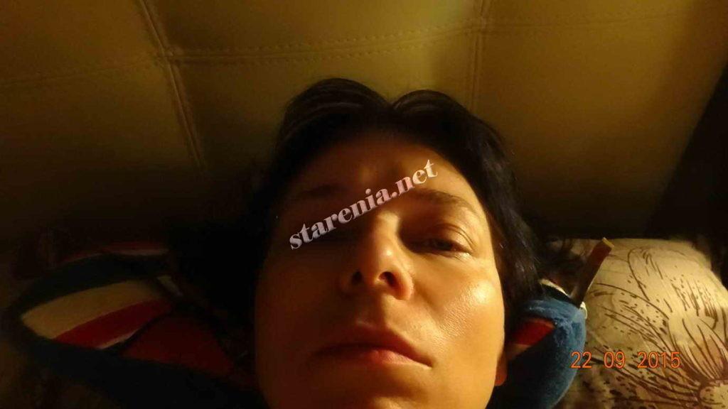Подтяжка лица без операции нитями Аптос