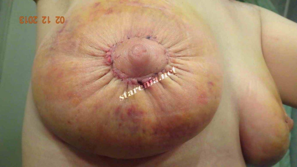 Мастопексия без имплантов