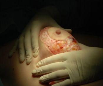 Операция мастопексия циркулярная