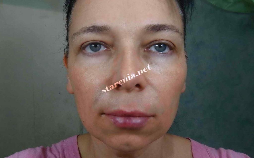 Увеличение губ. Фото сразу после процедуры
