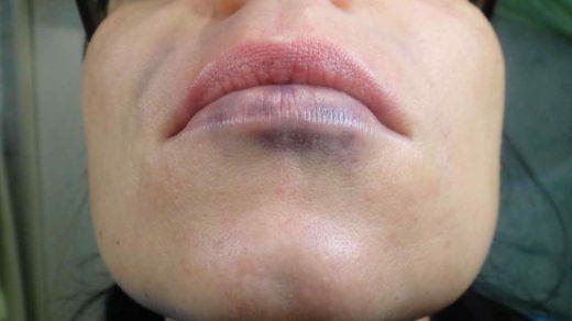 Увеличение губ. Фото через несколько часов