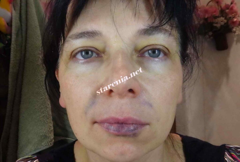 Увеличение губ. Фото на следующий день