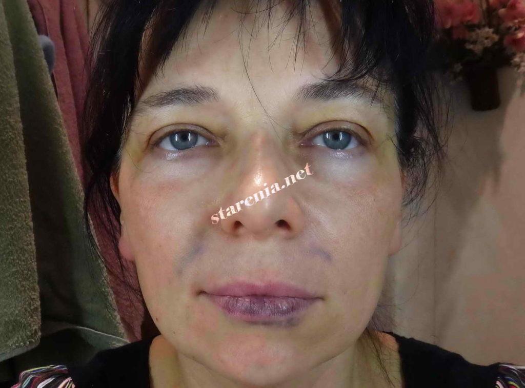 Увеличение губ. Фото на третий день