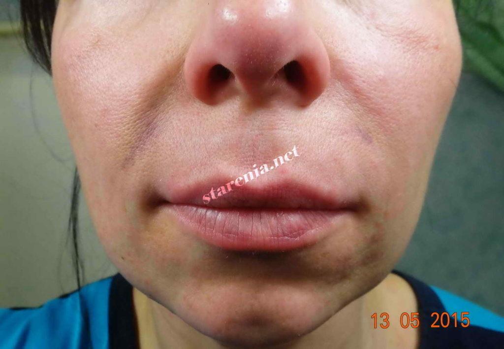 Увеличение губ. Фото на пятый день