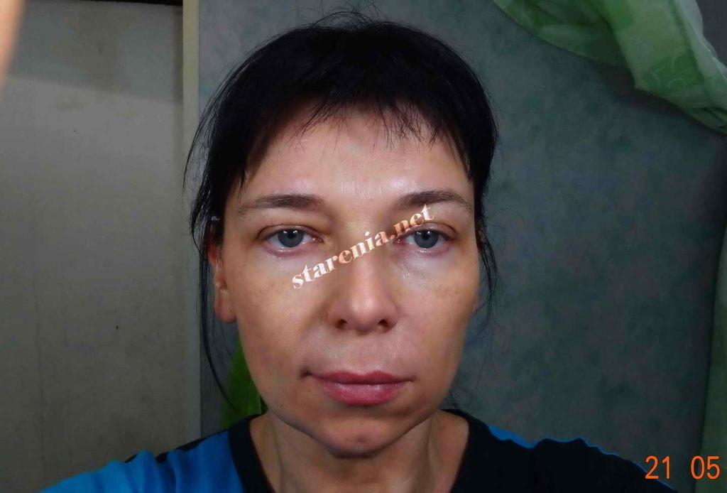 Увеличение губ. Через неделю после процедуры