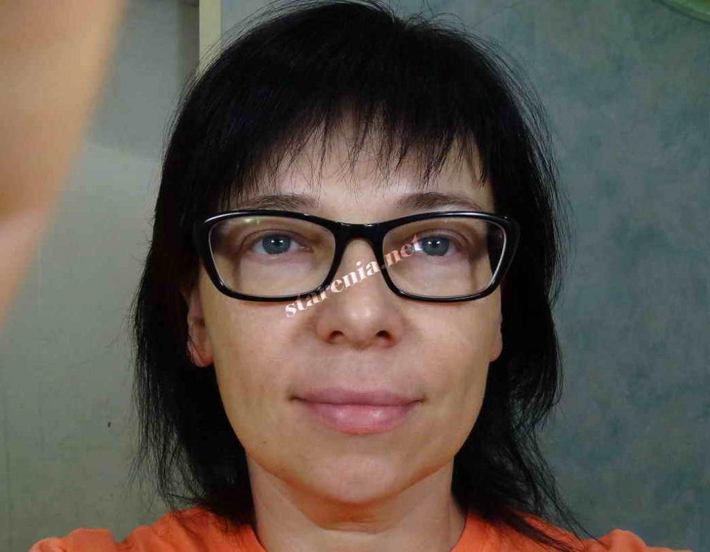 Увеличение губ. Фото через 10 дней после процедуры