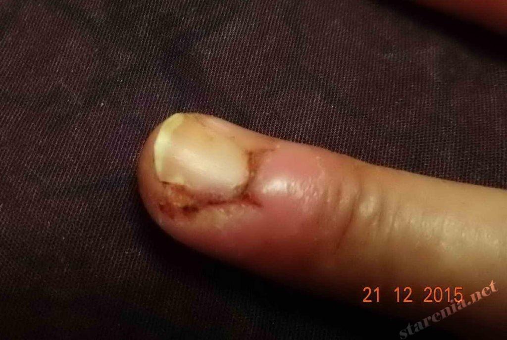 Паронихия. Через 6 дней после операции