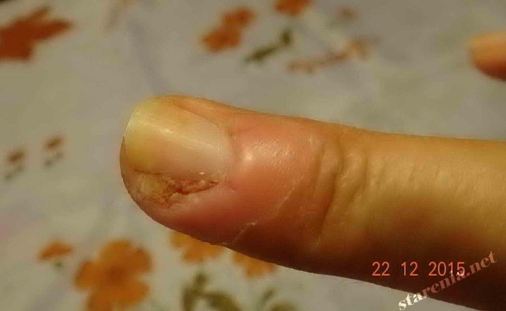 Паронихия. Через 1 неделю после операции
