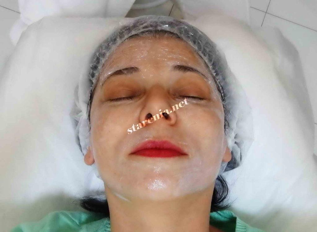 Обработка лица анестетиком перед плазмолифтингом
