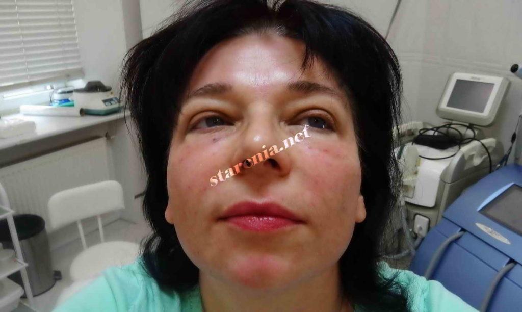 Фото лица после плазмолифтинга