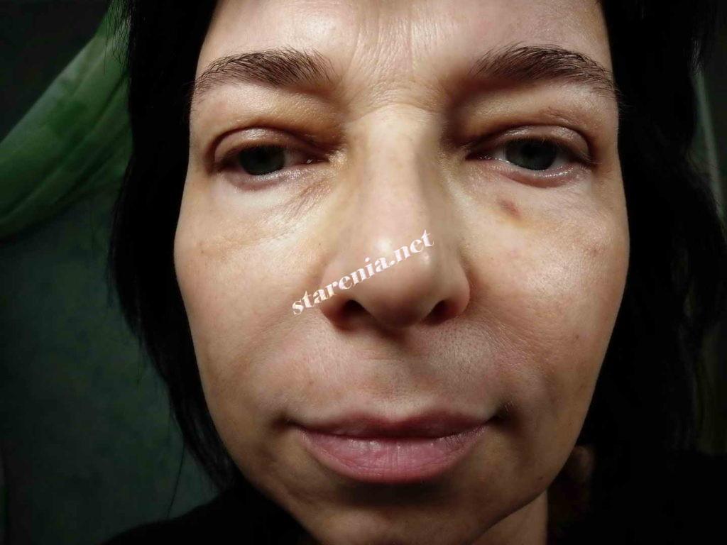 Лицо после плазмолифтинга