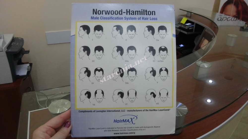 Пересадка волос. Таблица степеней облысения