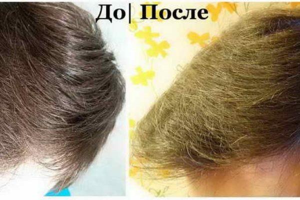 Реабилитация после пересадки волос