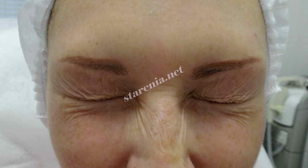Как убрать морщины возле глаз