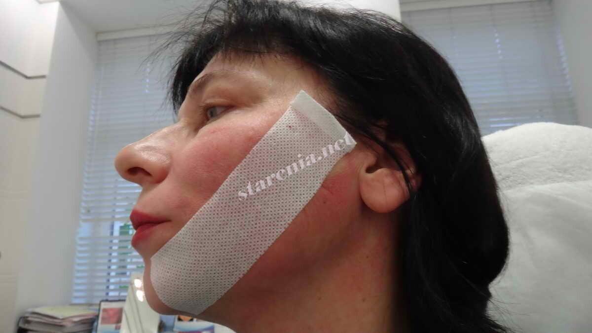 Нити Аптос Визаж для подтяжки лица. Фиксация после процедуры
