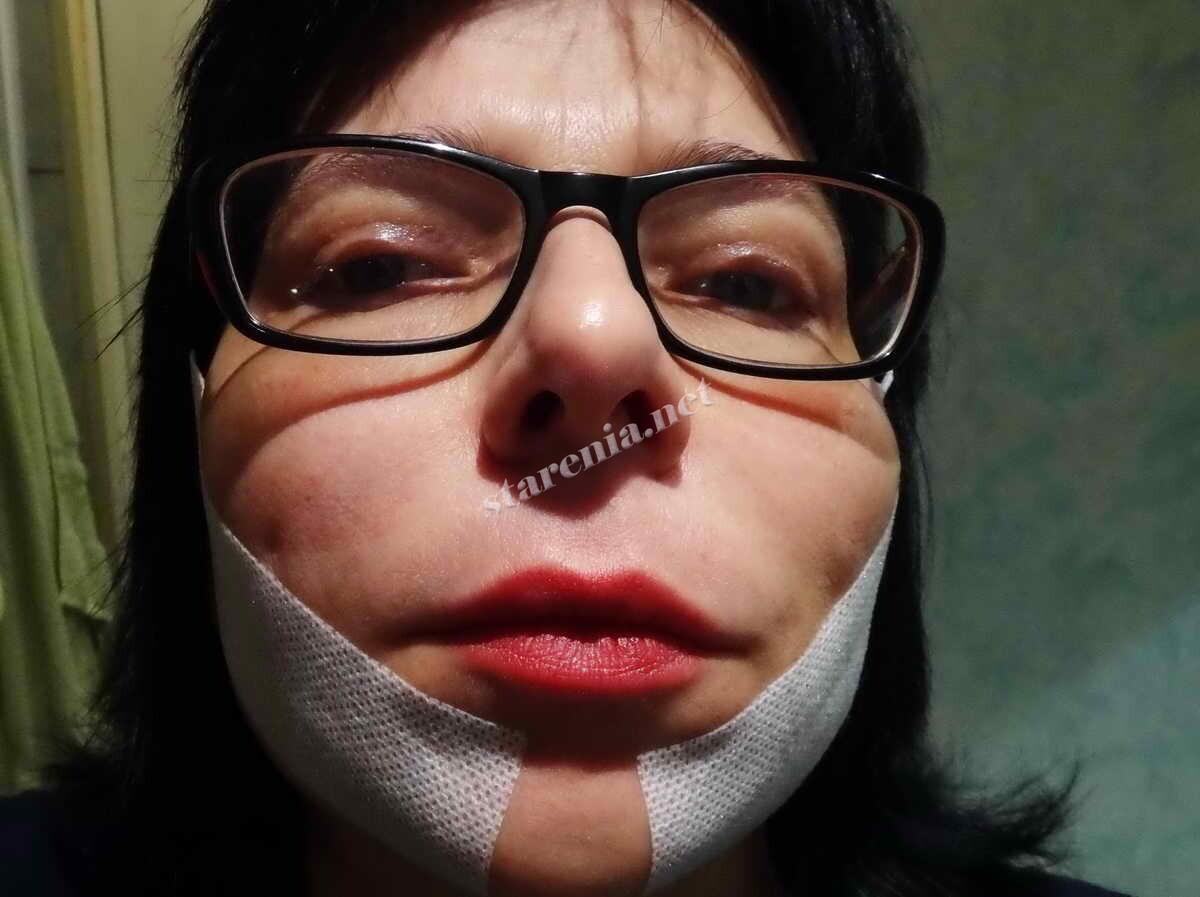 Нити Аптос Визаж для подтяжки лица. Через два часа после процедуры